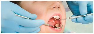 Tratamento-de-dente-para-bebes-e-crianças