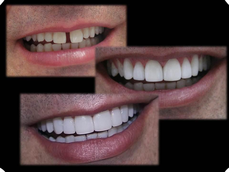 2c34dfa22 Lentes de contato dentais são rotineiramente usadas para corrigir